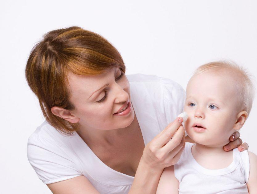 Neugeborenenakne - Baby-Akne